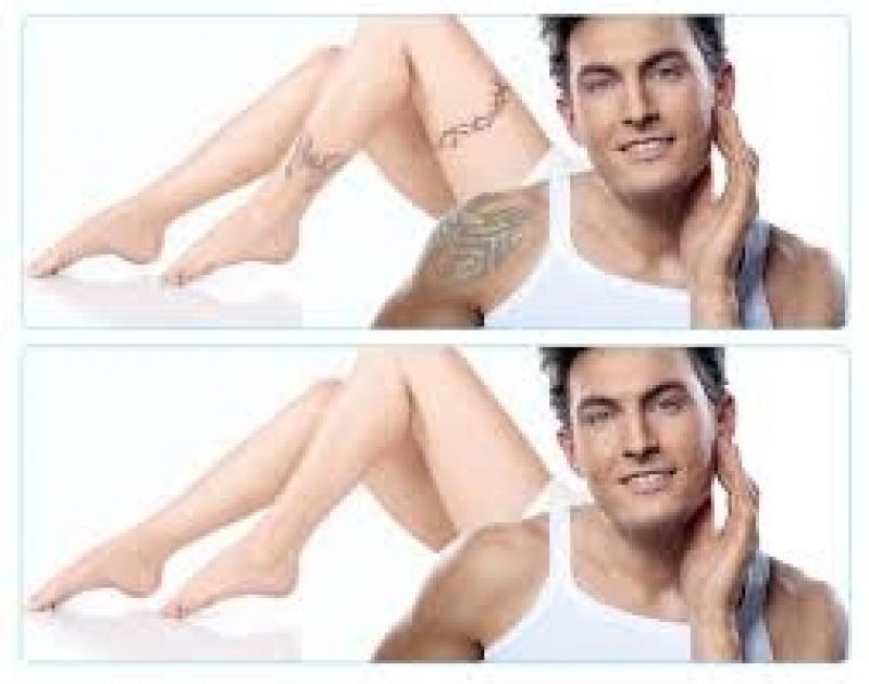 Clínica para Remover Tatuagem