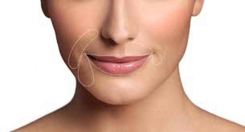 Aplicação de Restylane em Perdizes - Aplicação de Botox na Boca