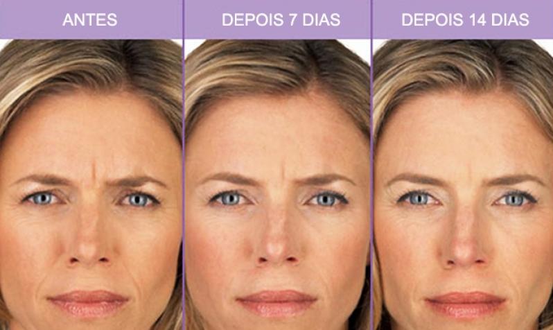 Botox para Bigode Chinês no Campo Grande - Aplicação de Botox para Rugas