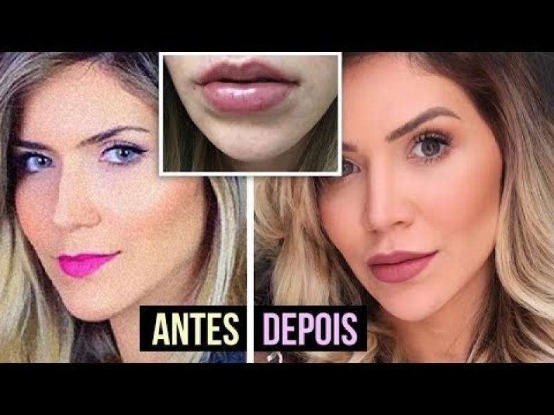 Botox para Arquear Sobrancelha