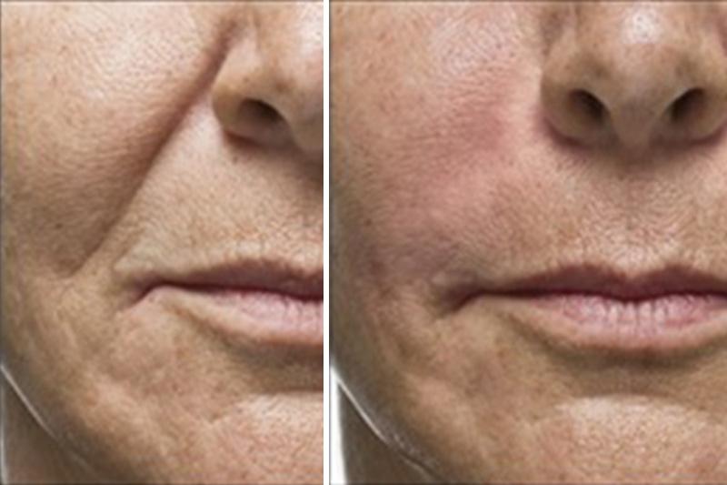 Botox para Flacidez no Rosto