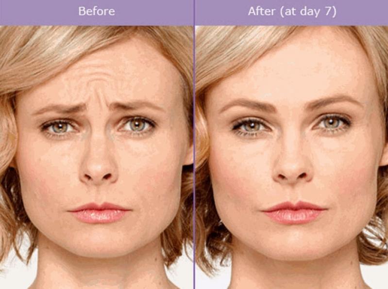 Botox para Sudorese Excessiva