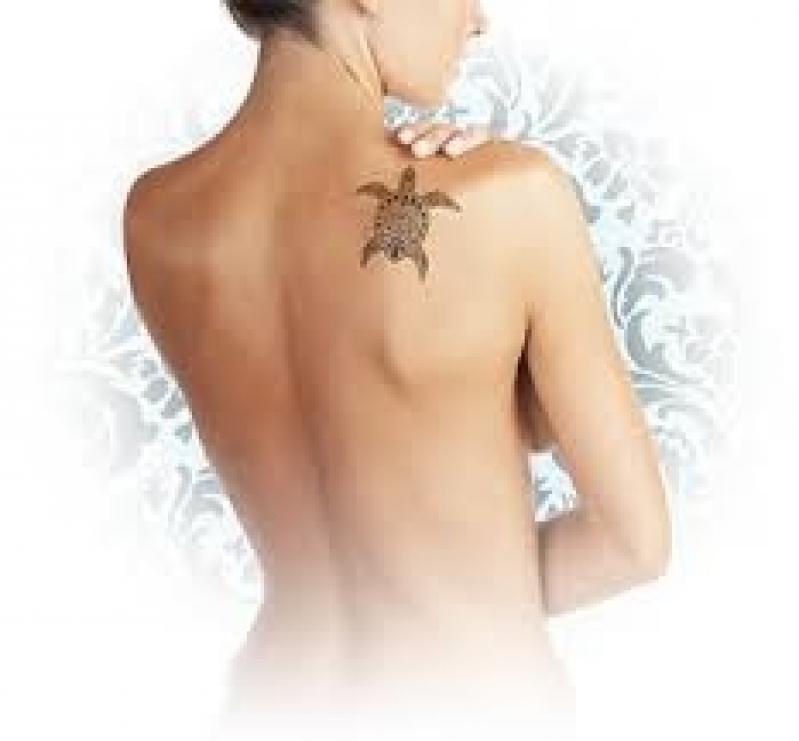 Clínica de Laser para Remoção de Tatuagem Capão Redondo - Remoção de Tatuagem em Pinheiros