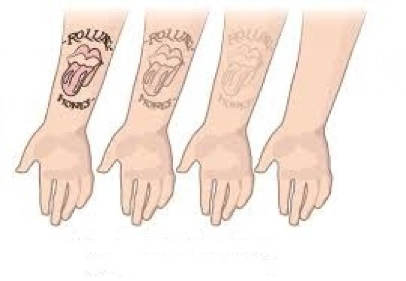 Remoção de Tatuagem em Pinheiros