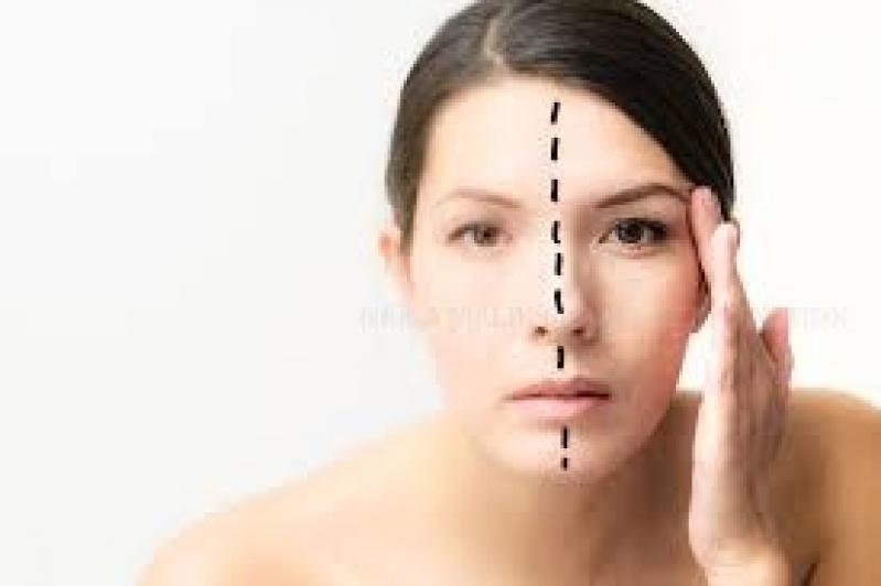 Preenchimento com Botox
