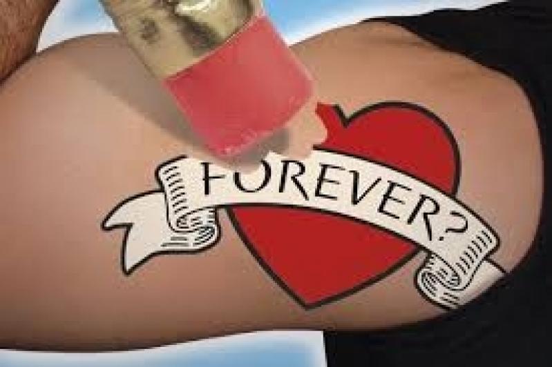 Clínica de Tratamento a Laser para Remoção de Tatuagem Socorro - Remoção de Tatuagem em Pinheiros
