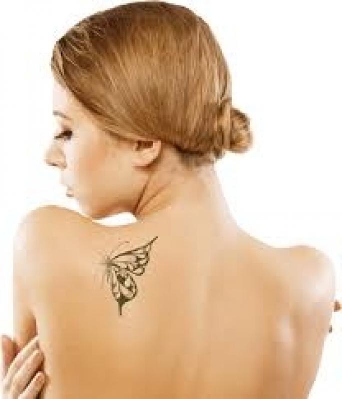 Clínica de Tratamento para Remoção de Tatuagens Vila Beatriz - Remoção de Tatuagem em Pinheiros
