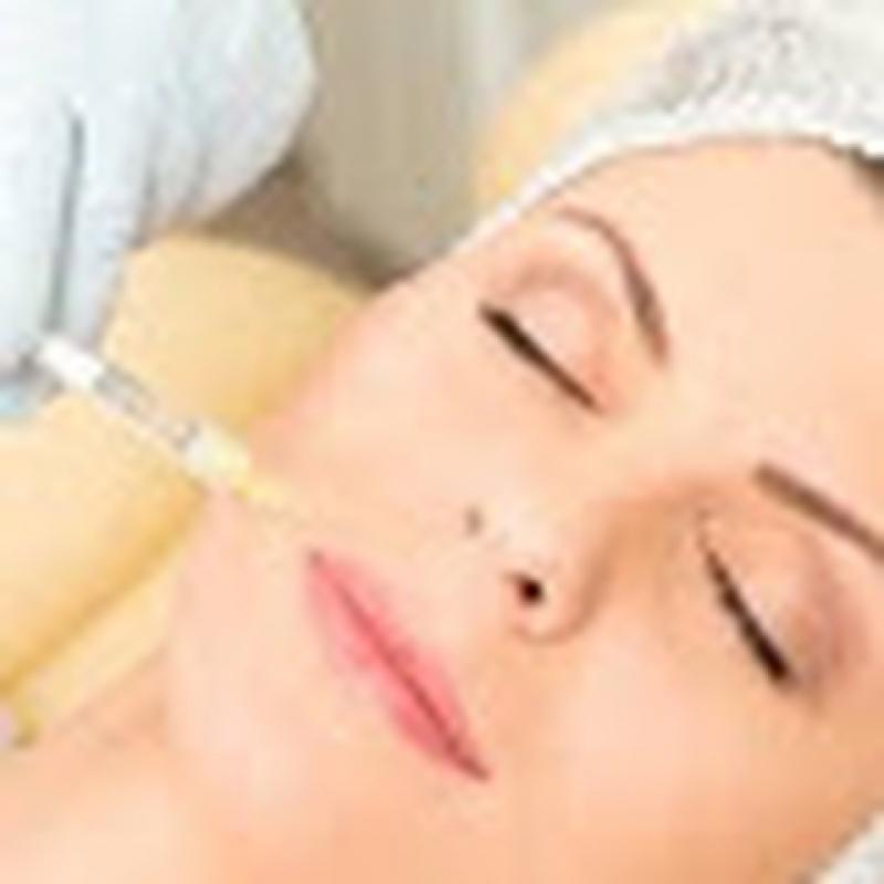 Harmonização Facial Procedimento
