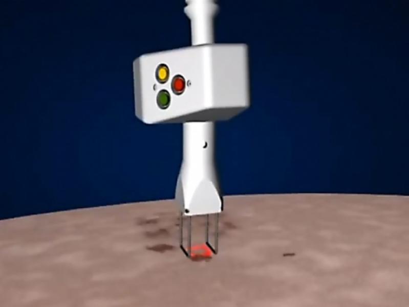 Laser de Co2 Fracionado para Estrias