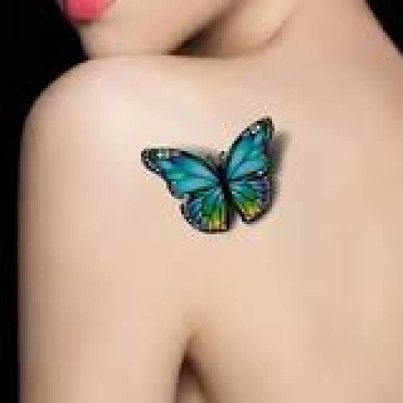 Laser para Remoção de Tatuagem Pedreira - Remoção de Tatuagem em Pinheiros