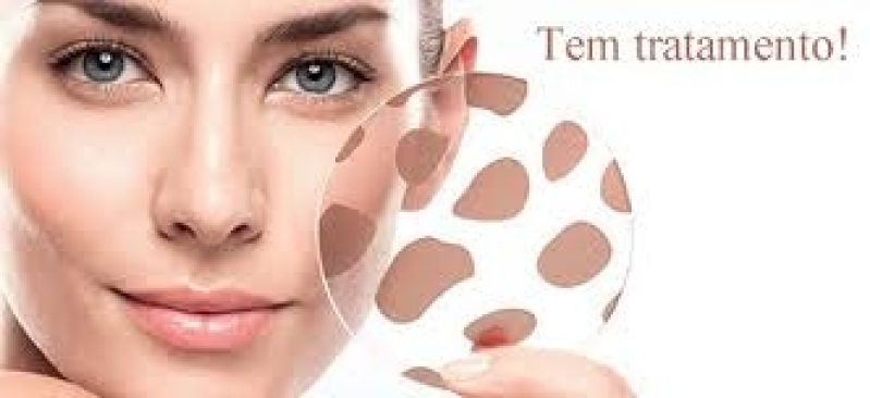 Manchas na Pele Tratamento Boaçava - Clareamento do Rosto