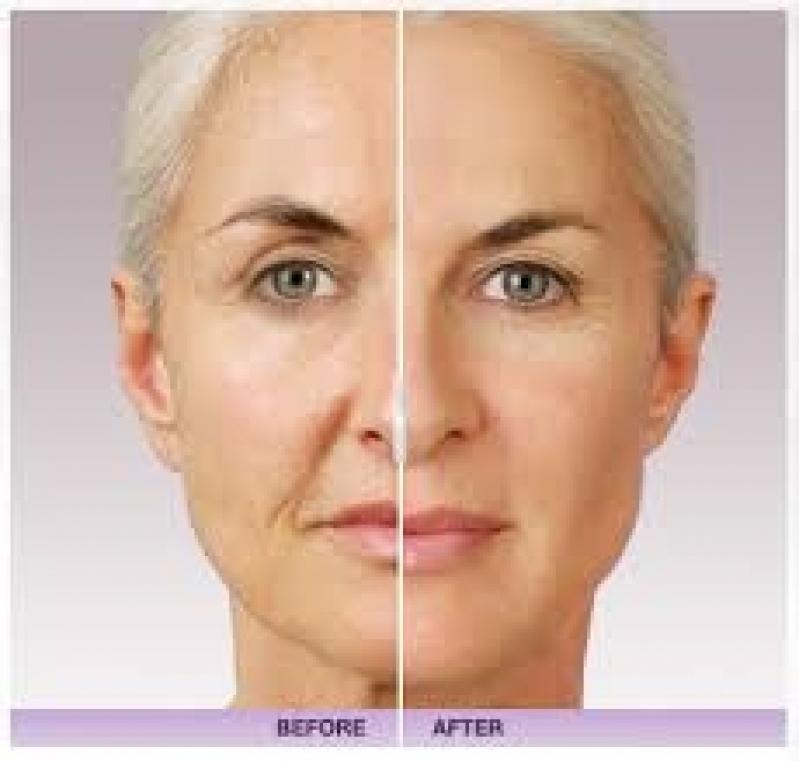 Preenchimento com Juvederme no Morumbi - Aplicação de Botox para Rugas