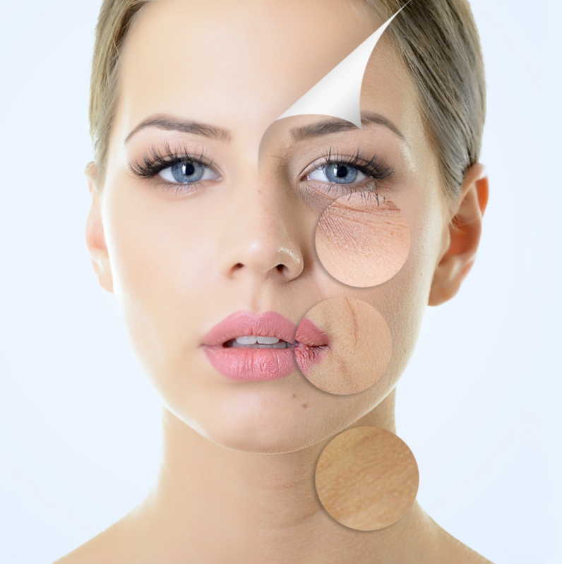 Preenchimento com Restylane em Itaquera - Aplicação de Botox para Rugas