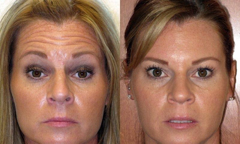 Botox para Sorriso Gengival