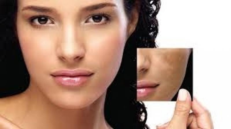 Quanto Custa Clareamento do Rosto Chácara Itaim - Tratamentos para Manchas na Pele