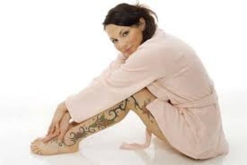 Quanto Custa Clínica para Remover Tatuagem Santo Amaro - Remoção de Tatuagem em Pinheiros