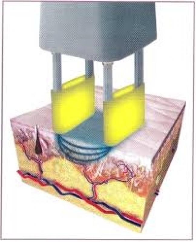 Quanto Custa Laser Co2 Fracionado para Celulite no Jardim Viana - Laser Co2 Fracionado para Celulite