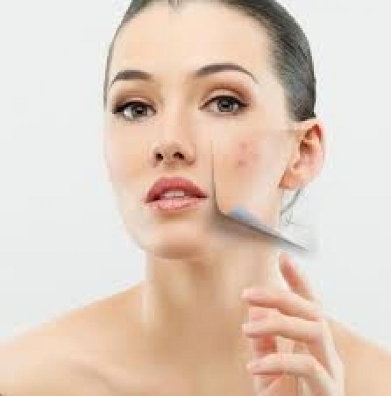 Tratamento de Pele a Laser