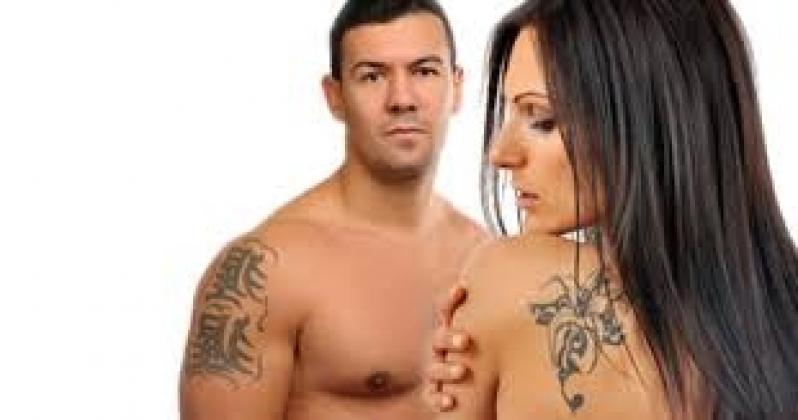 Remoção de Tatuagem Colorida a Laser Jardim Europa - Remoção de Tatuagem em Pinheiros