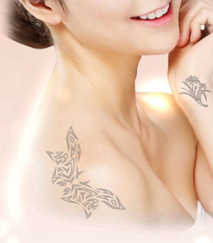 Remoção de Tatuagem Definitiva Itaquera - Remoção de Tatuagem em Pinheiros