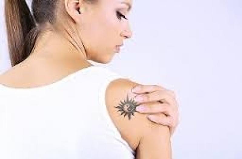 Remoção de Tatuagem em São Paulo Vila Olímpia - Remoção de Tatuagem em Pinheiros
