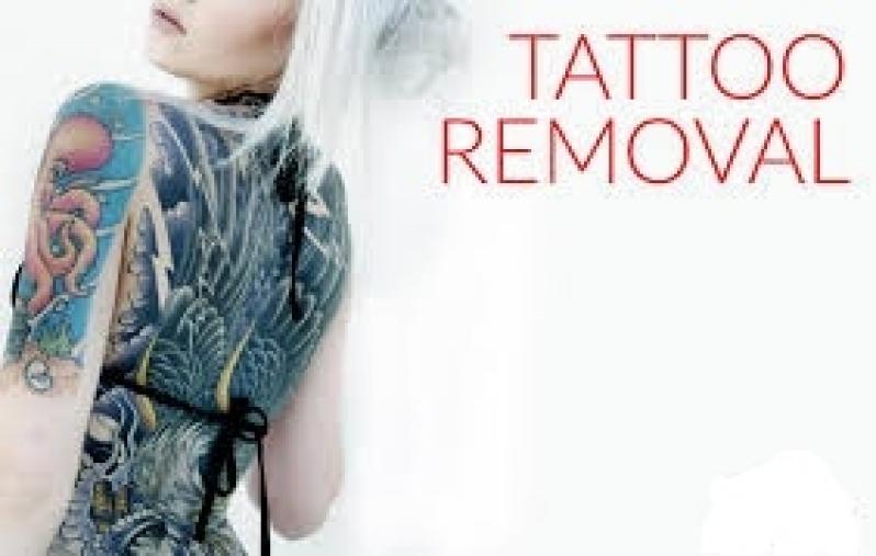 Remoção de Tatuagem em Sp Preço Ibirapuera - Remoção de Tatuagem em Pinheiros