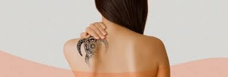 Remoção de Tatuagem Preta a Laser Itaquera - Remoção de Tatuagem em Pinheiros