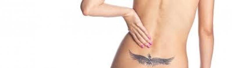 Tratamento a Laser para Remoção de Tatuagem