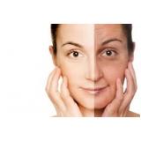 aplicação de laser para manchas no rosto Jardim das Rosas