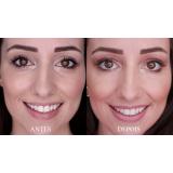 botox para área dos olhos