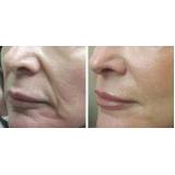 botox para bigode chinês