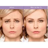 botox para empinar o nariz