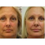 botox para área dos olhos preço Penha