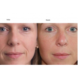 botox para bigode chinês preço Ibirapuera