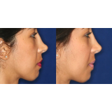 botox para empinar o nariz Sacomã