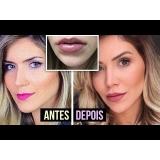 botox para preenchimento facial preço Itaim Paulista