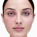 clareamento de manchas na pele preço Vila Nogueira