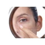 clareamento de manchas no rosto Jardim Edith