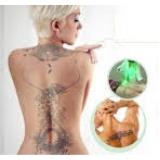 clínica com 3 deep para remoção de tatuagem Alto de Pinheiros