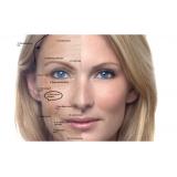 clínica de botox para área dos olhos Pinheiros