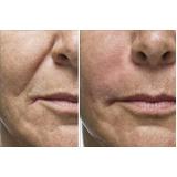 clínica de botox para bigode chinês Capão Redondo