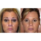 clínica de botox para flacidez no rosto Jardim Vera Cruz