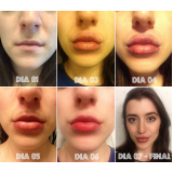 clínica de botox para preenchimento facial Jardim Vera Cruz