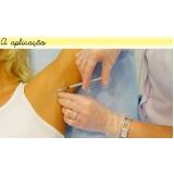clínica de botox para sudorese Campo Grande