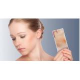 clínica de laser para manchas no rosto Mooca