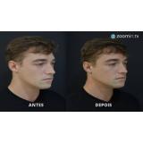 clínica de preenchimento 3d com ácido hialurônico Tatuapé