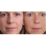 clínica de preenchimento com ácido hialurônico bigode chinês Vila Andrade