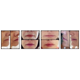 clínica de preenchimento com ácido hialurônico na boca Bela Vista