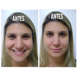 clínica de preenchimento com ácido hialurônico no nariz Engenheiro Goulart