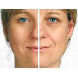 clínica de preenchimento com ácido hialurônico para bigode chinês Campo Grande